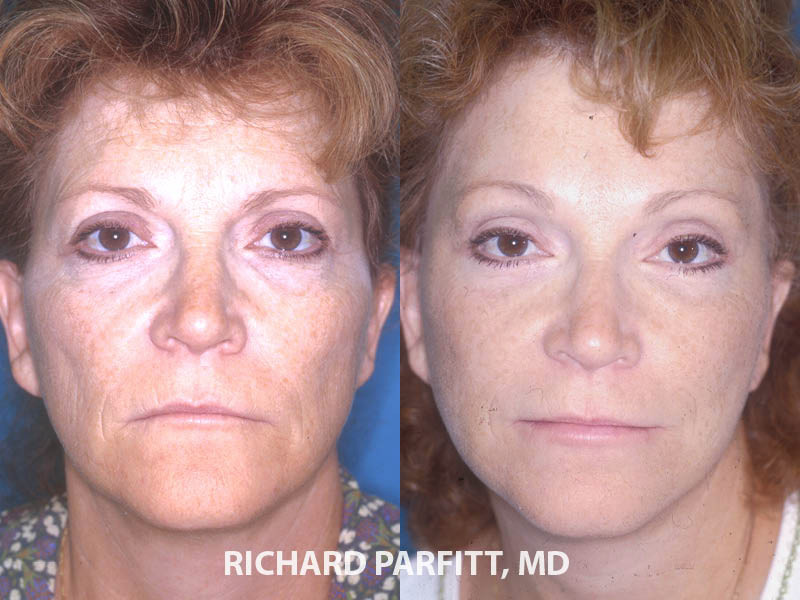 facelift before and after Minneapolis MN plastic surgery