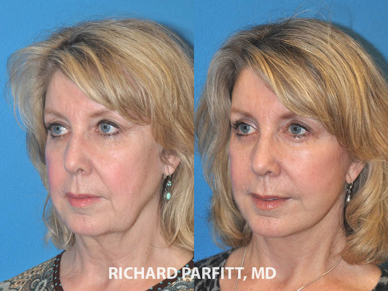 female facelift before and after Midwest plastic surgery