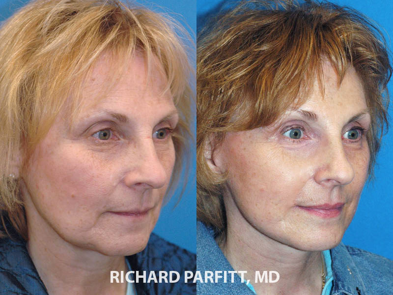 Midwest facelift expert before and after facelift plastic surgery