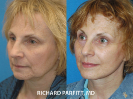 60 year old facelift before and after plastic surgery Milwaukee WI