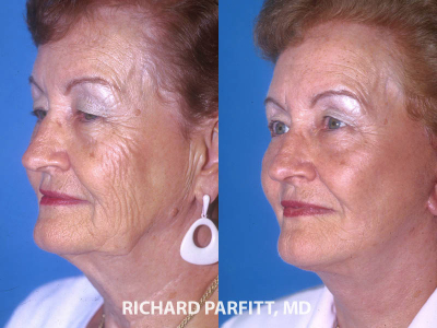 IL facelift expert before and after deep plane facelift plastic surgery
