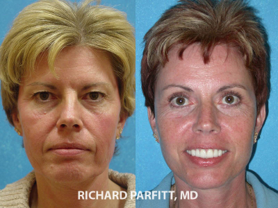 facelift blepharoplasty female before and after plastic surgery Wisconsin