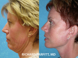 facelift neck lift before and after facial cosmetic surgery Appleton WI