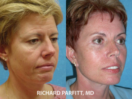 IA facelift expert before and after facelift plastic surgery
