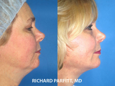 chin implant facelift before and after plastic surgery Madison WI