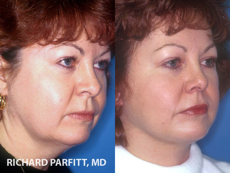 before and after facelift plastic surgery Middleton WI