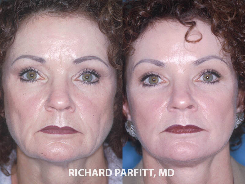 facelift WI before and after facial cosmetic surgery