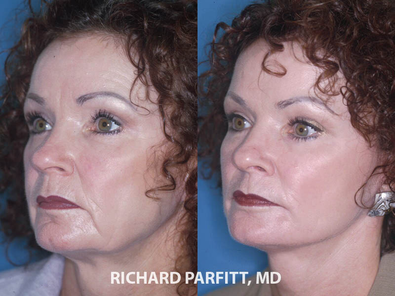 female facelift before and after cosmetic surgery procedure