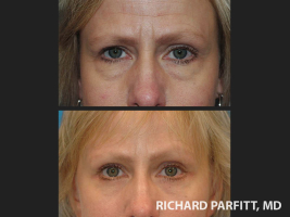 Appleton-forehead-lift-before-and-after-patient