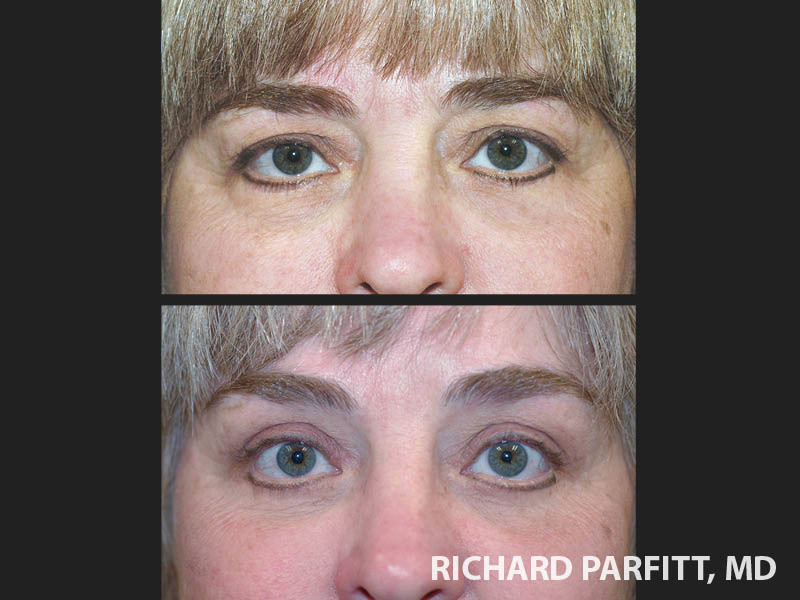 plastic-surgery-Milwaukee-WI-forehead-lift-before-and-after
