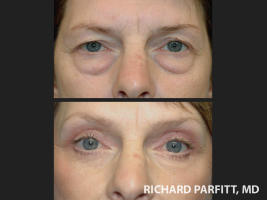 Wisconsin-brow-lift-eyelid-procedure-before-and-after