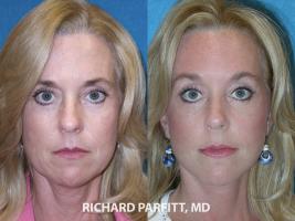 Madison-plastic-surgery-forhead-lift