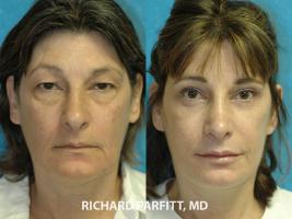 Minneapolis-MN-cosmetic-surgery-forehead-lift-female