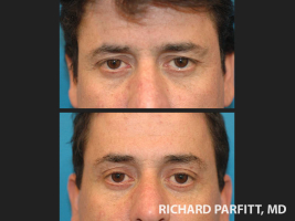 Appleton-WI-cosmetic-surgery-forehead-lift-male