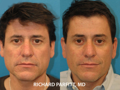 Madison-WI-cosmetic-surgery-forehead-lift-male