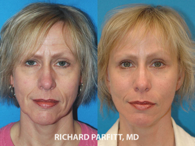 brow-lift-plastic-surgery-before-and-after