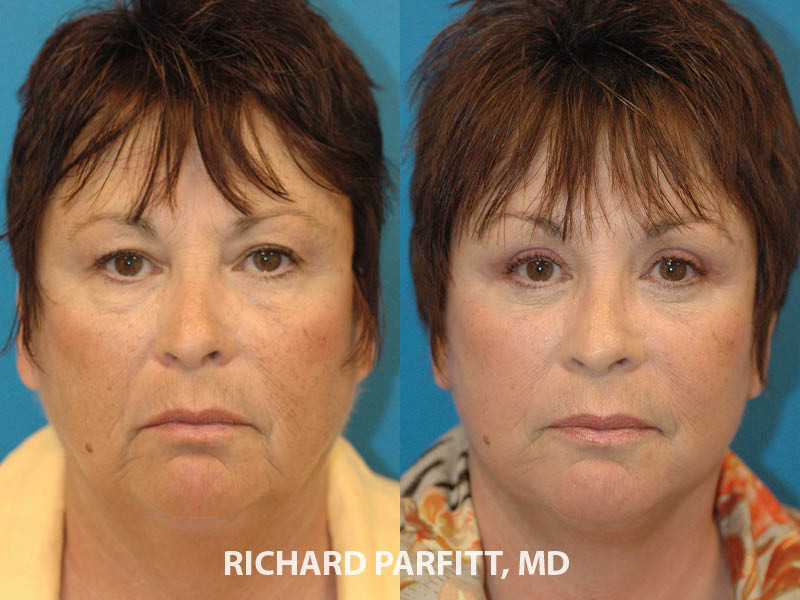 plastic-surgery-brow-lift-50-year-old-before-and-after-female