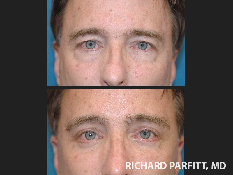 WI-plastic-surgery-male-facelift-forehead-lift