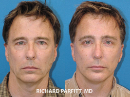 plastic-surgery-forehead-lift-facelift-male
