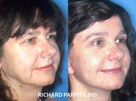 forehead-lift-before-and-after-Middleton-plastic-surgery
