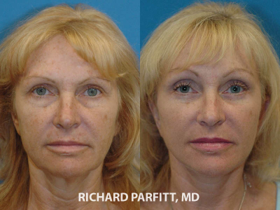 cosmetic-surgery-Milwaukee-forehead-lift-before-and-after
