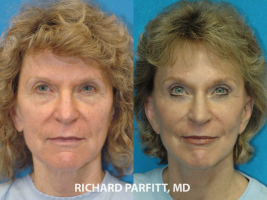 cosmetic-surgery-Green-Bay-forehead-lift-female