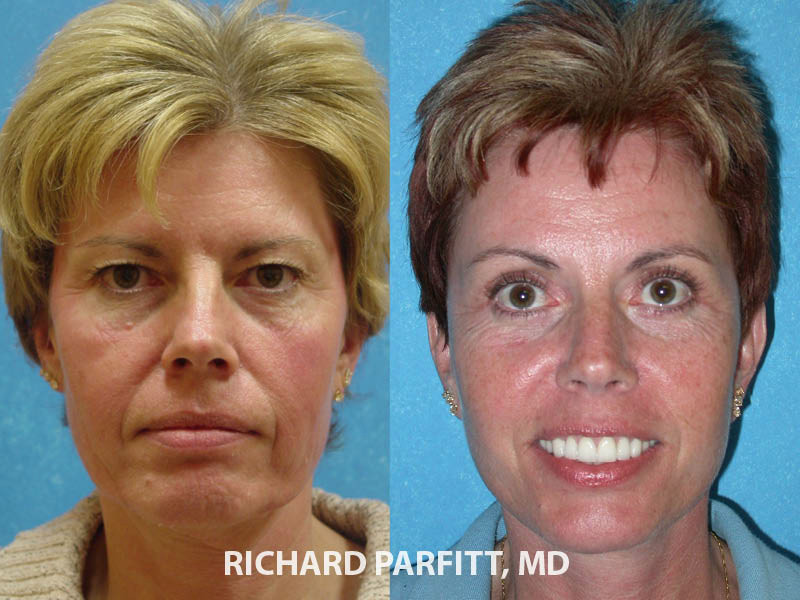 Madison WI plastic surgery before and after brow lift