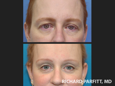 plastic-surgery-Madison-brow-lift-before-and-after