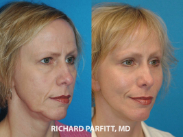 Wisconsin-brow-lift-face-lift-before-and-after-female