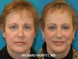 Middleton-WI-brow-lift-50-year-old-before-and-after-female