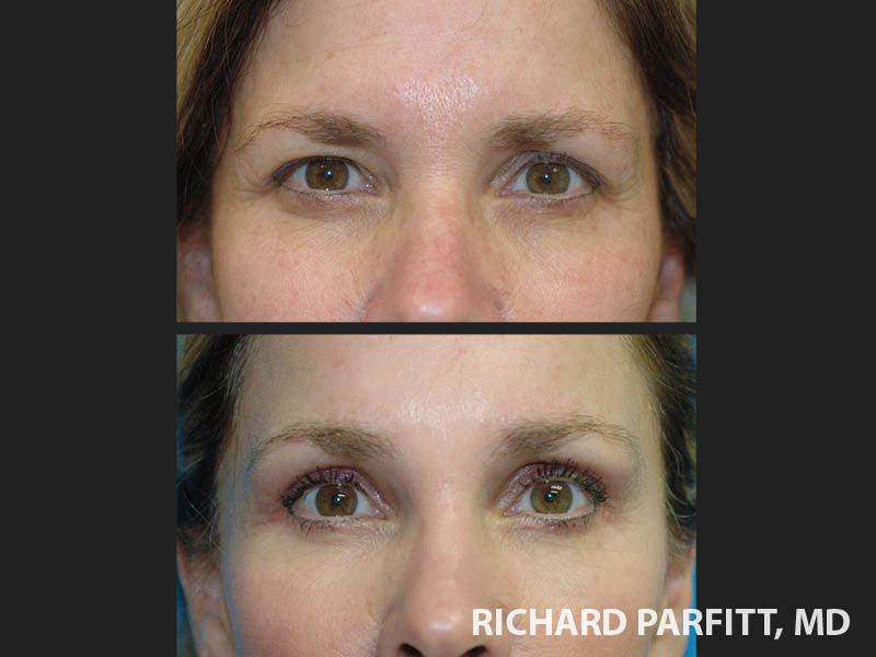 forehead-lift-eyelid-surgery-Chicago-before-and-after