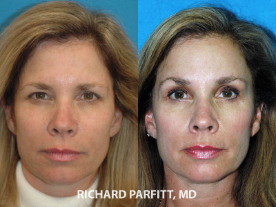 WI-cosmetic-surgery-forehead-lift-eyelid-before-and-after