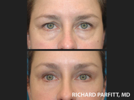 plastic-surgery-Appleton-brow-lift-before-and-after
