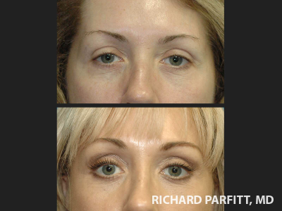 Madison-surgery-brow-lift-50-year-old-before-and-after-female