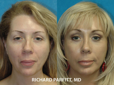cosmetic-surgery-facelift-forehead-lift-before-and-after