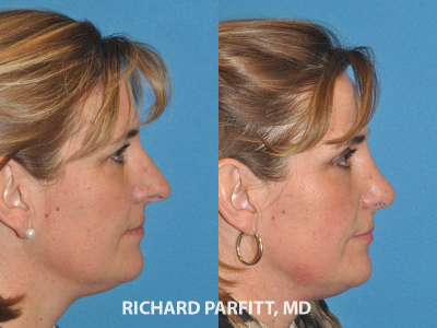 nose job expert Madison WI