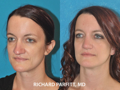 nose job surgery before and after female Minneapolis MN