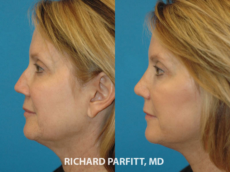 plastic surgery nose surgery before and after side view Chicago IL