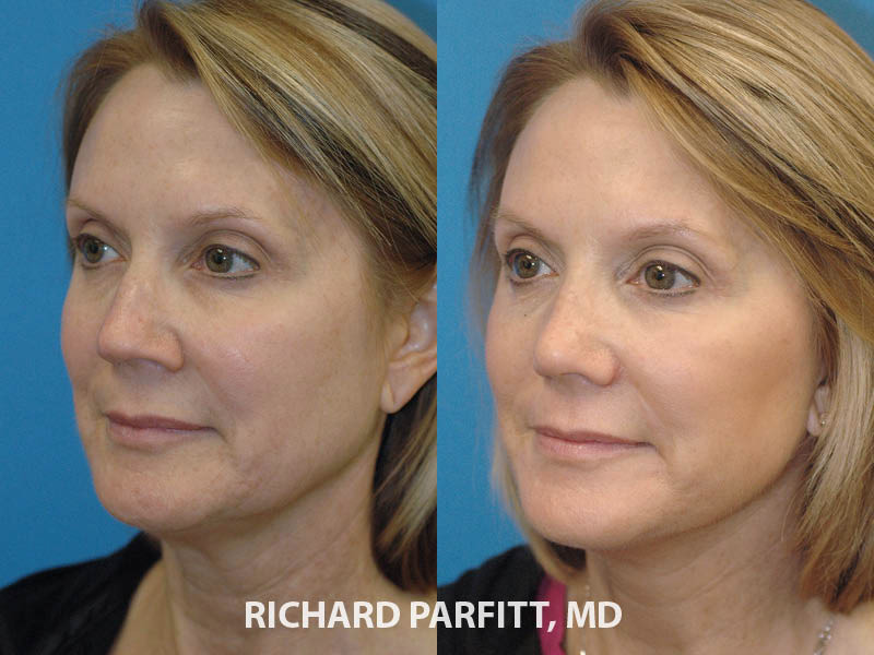 Madison WI Facial Plastic Surgeon nose surgery before and after
