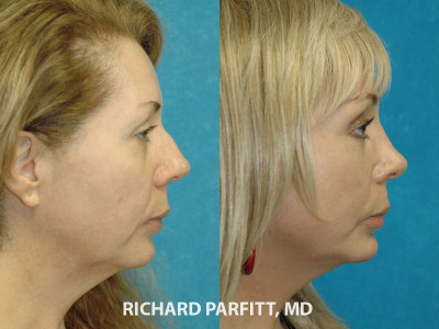 Madison WI plastic surgery rhinoplasty before and after