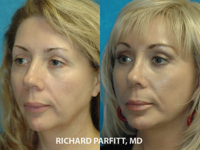 facial plastic surgery Madison WI rhinoplasty female 50 year old patient
