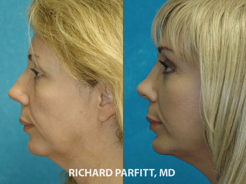 best facial plastic surgeon rhinoplasty nose job before and after