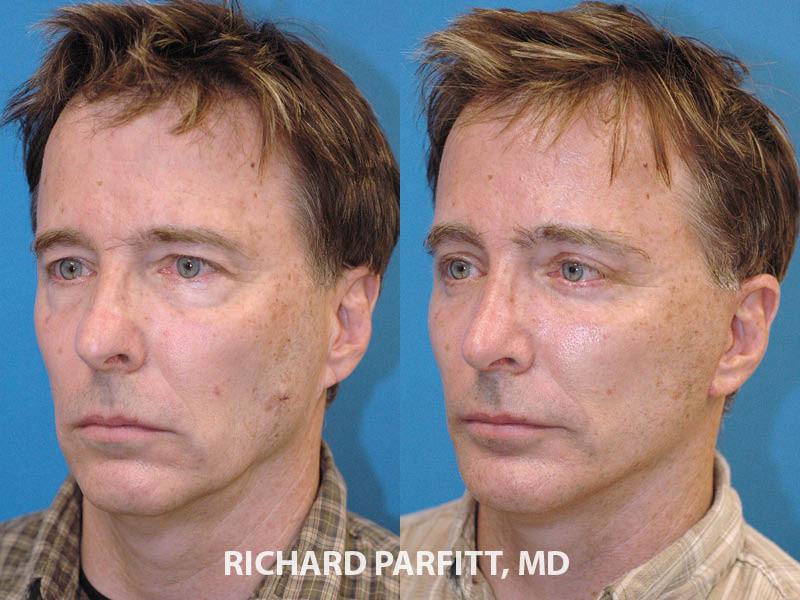 best plastic surgeon Milwaukee WI rhinoplasty