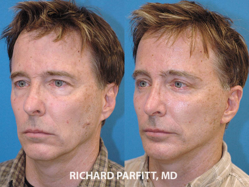 rhinoplasty facelift male plastic surgery before and after oblique view