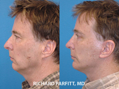 plastic surgery male rhinoplasty Middleton WI