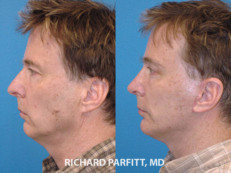 rhinoplasty facelift male plastic surgery before and after side view