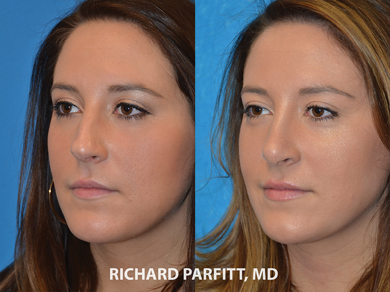 nose job procedure before and after photos facial surgery