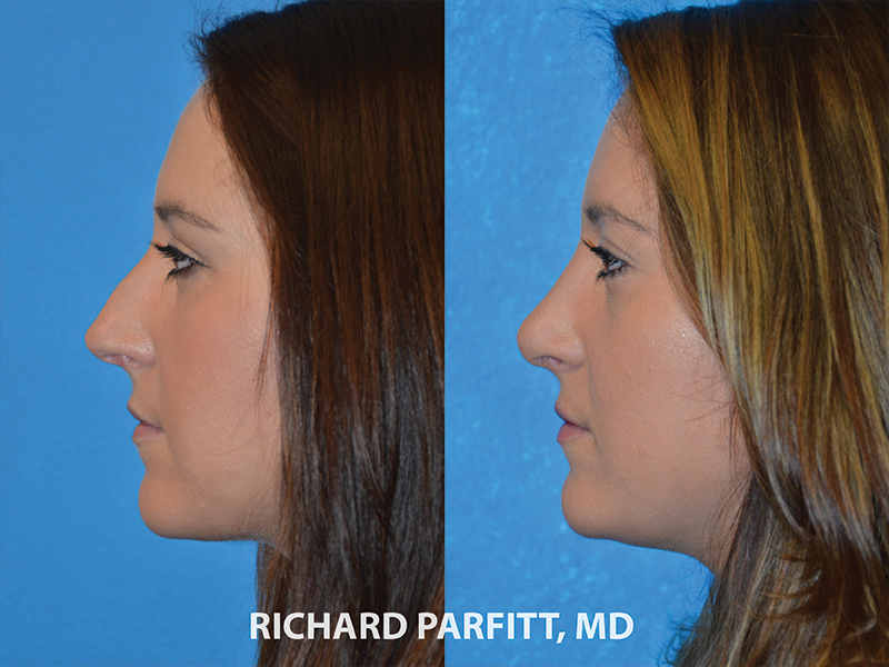 nose job surgery before and after photos facial plastic surgeon WI