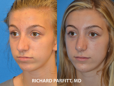 rhinoplasty young girl before and after photos