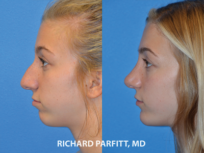 rhinoplasty young girl before and after